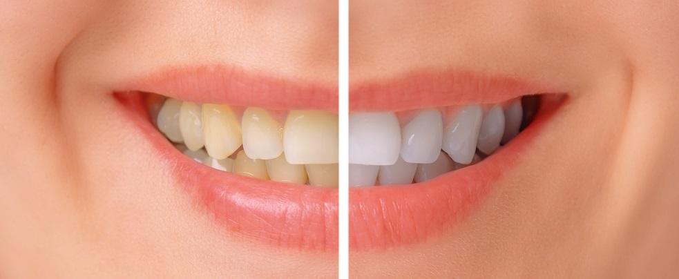 tandblekning hemma test